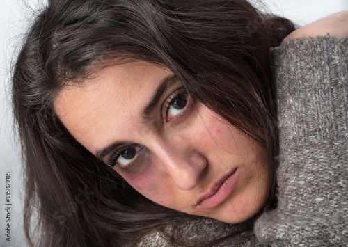 Poster  Attractive woman with a bruised black eye