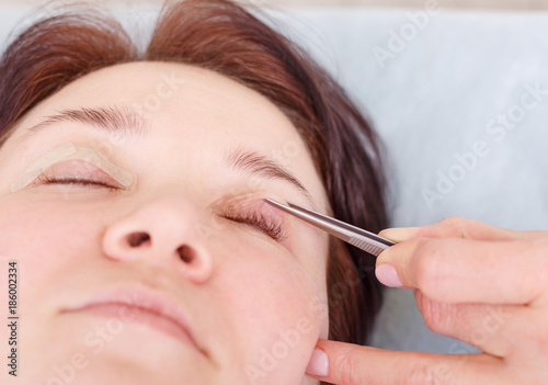 Photo Surgeon applies a bandage to the female patient's eyelids after a blepharoplasty