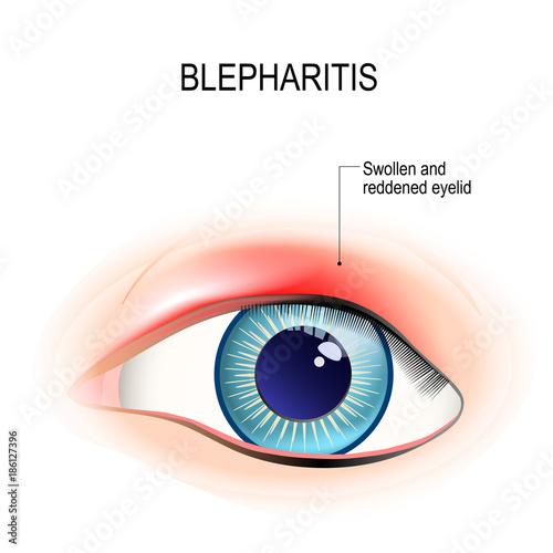 Eye of human. Blepharitis. inflammation of the eyelid Wallpaper Mural