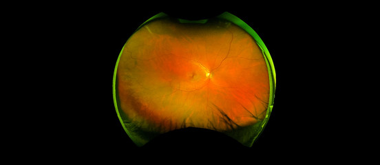 eye's retinal angle image with macula, vessels and optic disc isolated view on a black bacground. made by ultra wide fundus camera
