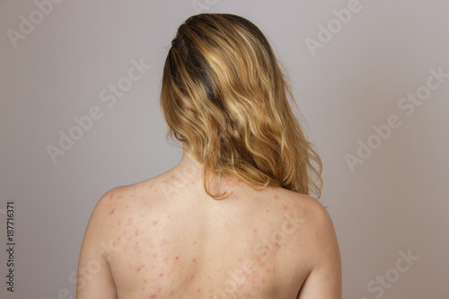Young girl with acne, with red spots on the back