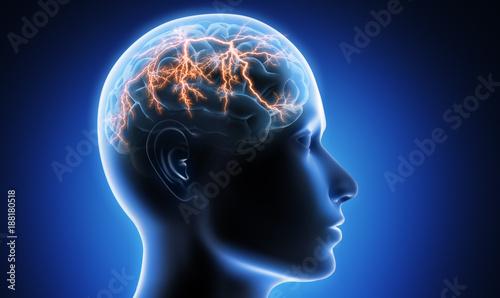 Obraz Migräneanfall - Kopfschmerz - fototapety do salonu