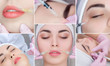 Leinwandbild Motiv Collage Rejuvenating facial injections procedure for tightening and smoothing wrinkles on the face skin of a beautiful, young woman in a beauty salon.Cosmetology skin care.