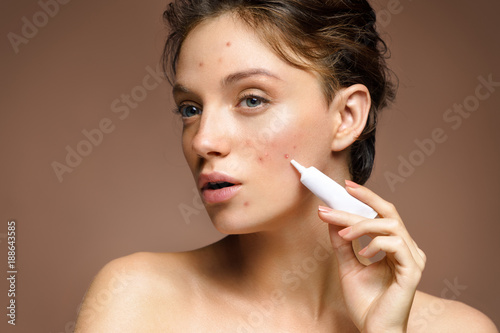 Fotografie, Obraz  Ugly young girl with problem skin using treatment cream on beige background
