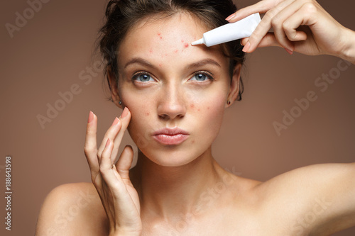 Teen girl with problem skin applying treatment cream on beige background Wallpaper Mural