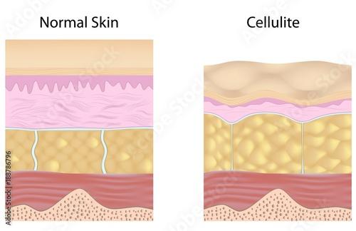 Valokuva  Cellulite versus smooth skin unlabeled