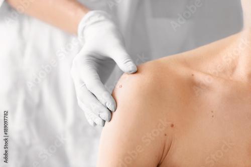 Dermatologist examining birthmark of patient, closeup Fototapet