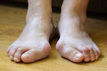 Problem Feet With Bunion (Hall...