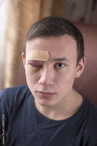 Fotografie, Obraz  A young man with a bruise in his eye and a band-aid posing for the camera