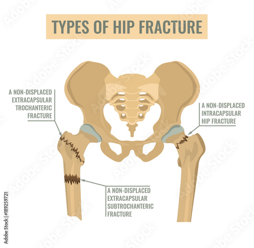 Types of hip fracture Wallpaper Mural