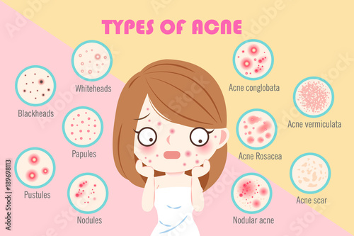 Fotografie, Obraz  girl with types of acne