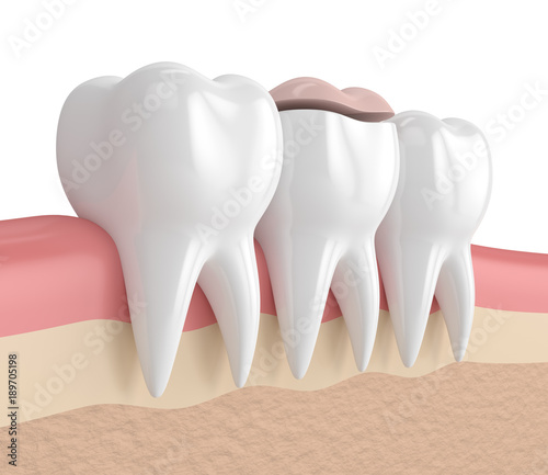 3d render of teeth with dental onlay filling #189705198