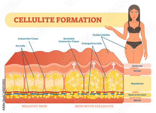 Cellulite formation vector illustration diagram, medical information scheme Wallpaper Mural
