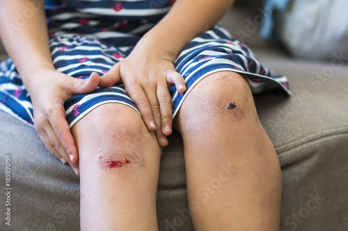 Photo Close-up of little girl holding her bruised injured damaged knee with her hands