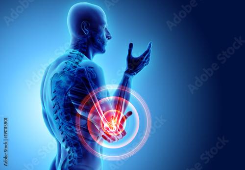 Fotografía  3d illustration of human elbow injury.