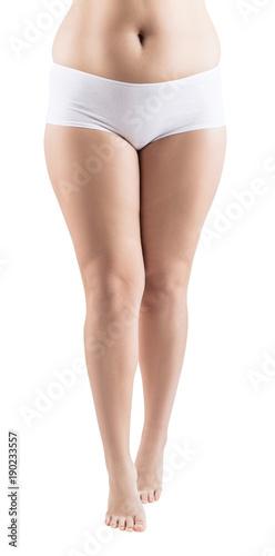 Fotografia, Obraz  Fat legs of young woman. Obesity concept.
