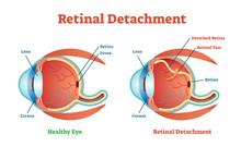 Retinal Detachment Vector Illustration Diagram, Anatomical Scheme.