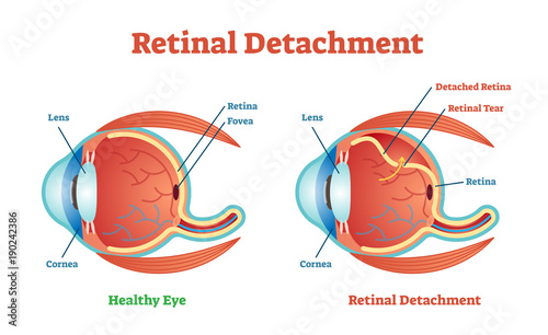 Fotografía  Retinal Detachment vector illustration diagram, anatomical scheme