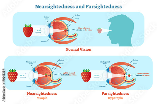 Fotomural  Far Sightedness and Near Sightedness vector illustration diagram, anatomical scheme