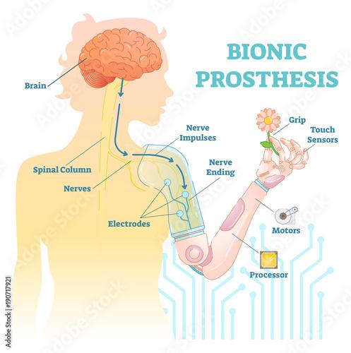Fotografie, Obraz  Bionic prosthesis - robotic female hand