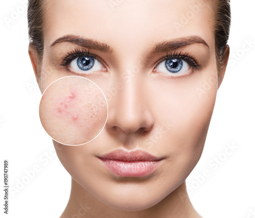 Photo Young woman with acne skin in zoom circle.