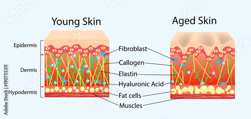 Fotografía  Vector diagram with schemes of two types of skin, for healthcare illustrations