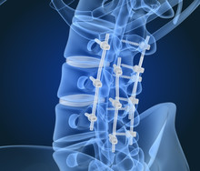 Spinal Fixation System - Titanium Bracket. X-ray View. 3D Illustration