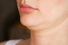 Face Line Correction. A Woman ...