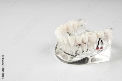 Fotografie, Obraz  Oral healthcare, education concept