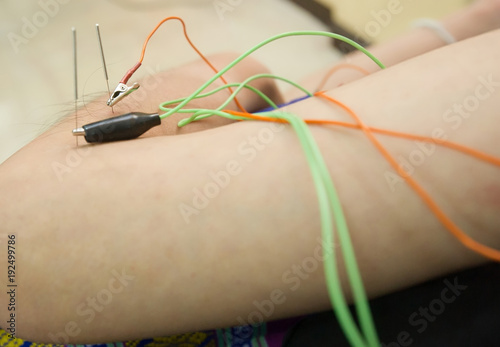 Acupuncture specialist doctor inserting needle with electrode clamp into patient body for pain treatment Fototapet
