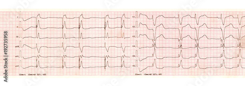 ECG with pacemaker arrhythmia (ventricular stimulation) Canvas Print
