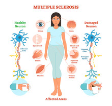 Multiple Sclerosis Anatomical ...