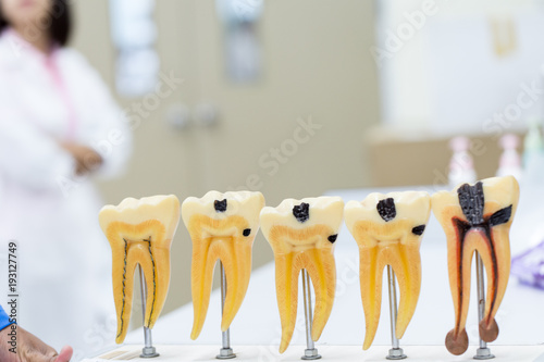 Tooth model for education in laboratory. Fototapet