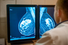 Doctor Examines Mammogram Snap...