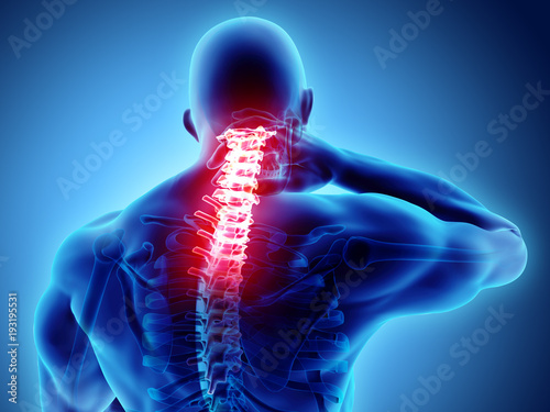 Photo 3D illustration, neck painful - cervical spine skeleton x-ray, medical concept