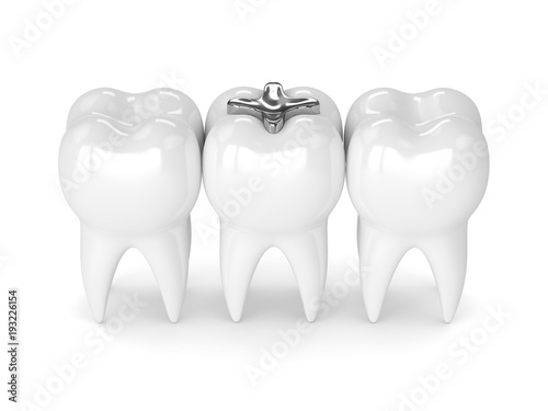 3d render of teeth with dental amalgam filling Fototapeta
