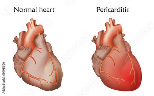 Pericarditis. Inflammation of the pericardium. Damaged and normal ...