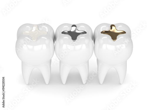 Fotografie, Obraz  3d render of teeth with different types of dental filling