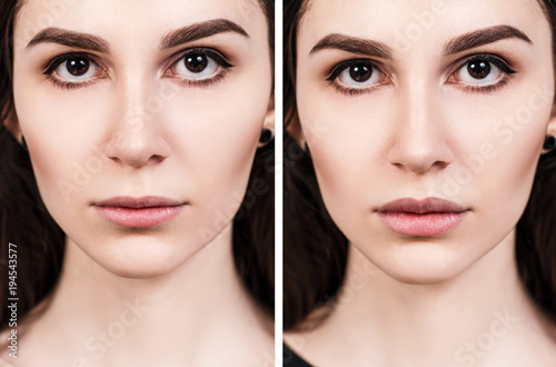 Lips of young woman before and after augmentation Canvas Print