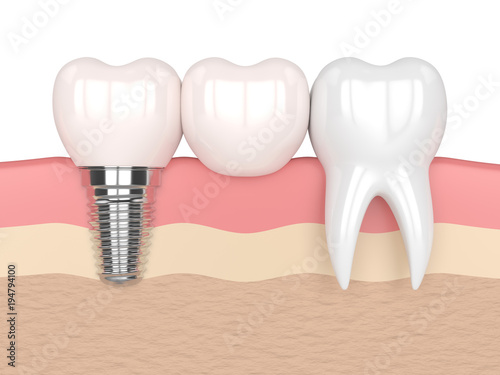3d render of implant with dental cantilever bridge #194794100