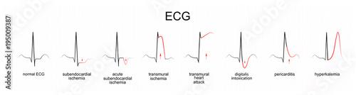 interpretation of ECG Tablou Canvas