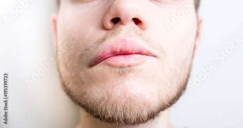 Quincke's edema, allergic reaction of angioedema. stroke. Wallpaper Mural