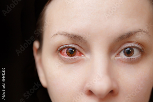 Photo Close up of one annoyed red blood and health eye of female affected by conjunctivitis or after flu, cold or allergy