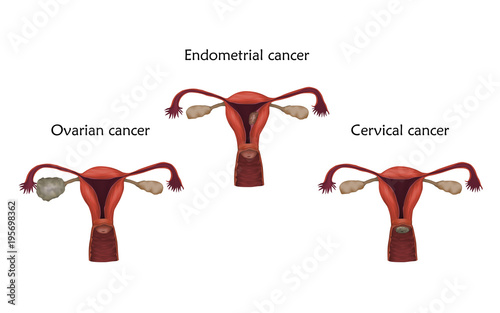 Ovarian, endometrial and cervical cancer. Human realistic uterus ...