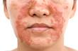 Leinwandbild Motiv Seborrheic Dermatitis face