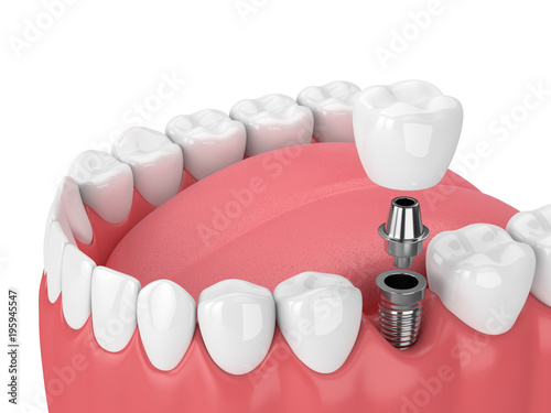 3d render of jaw with teeth and dental molar implant Canvas Print