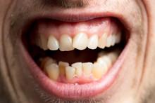 Crooked Ugly Teeth.
