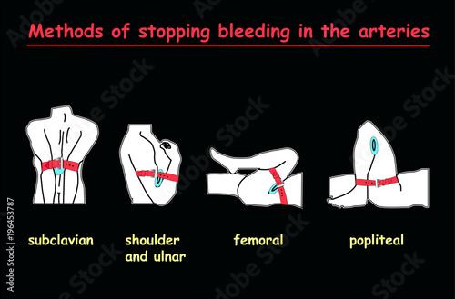 Photo methods of stopping bleeding in the arteries white body on black background