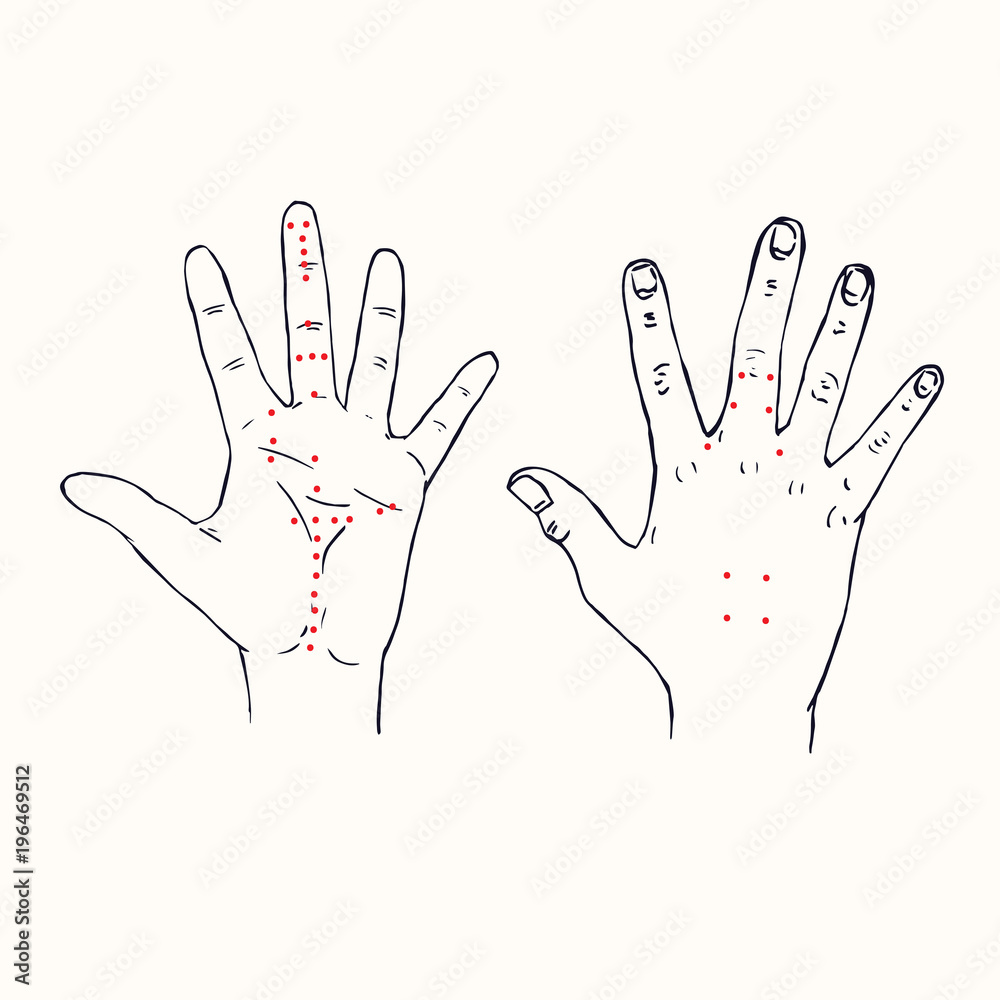 Fototapeta Hands (palm of left hand and dorsum of right hand) Korean acupuncture scheme with red points, hand drawn doodle, sketch in pop art style, black and white medical vector illustration - obraz na płótnie