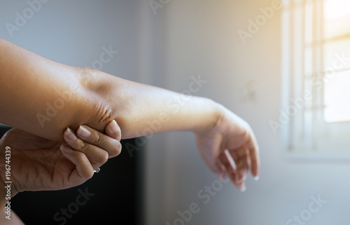 Fotografía  Close up of woman with dry skin on elbow and arm,Body and health care concept,Se